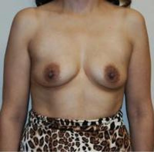 Breast Augmentation Gallery - Patient 22391261 - Image 1