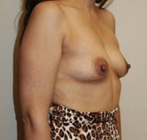 Breast Augmentation Gallery - Patient 22391261 - Image 3