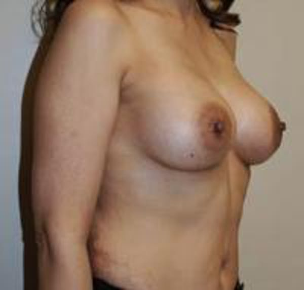 Breast Augmentation Gallery - Patient 22391261 - Image 4