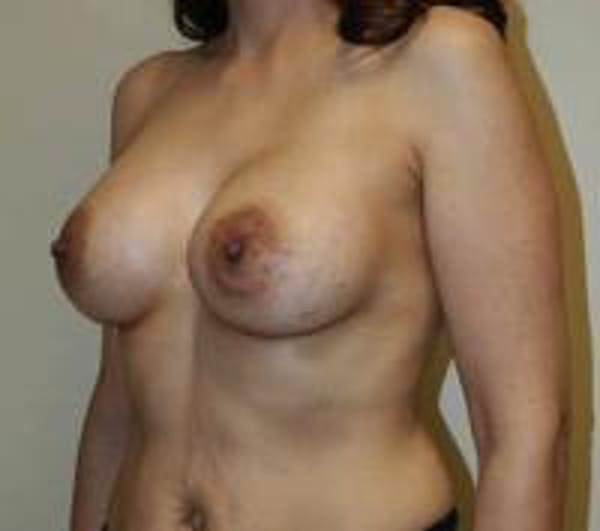 Breast Augmentation Gallery - Patient 22391261 - Image 6