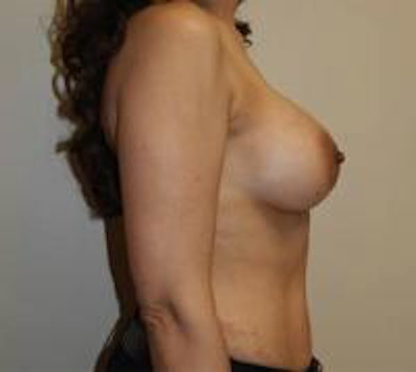 Breast Augmentation Gallery - Patient 22391261 - Image 8
