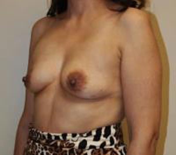 Breast Augmentation Gallery - Patient 22391261 - Image 5