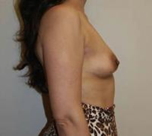 Breast Augmentation Gallery - Patient 22391261 - Image 7