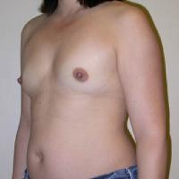 Breast Augmentation Gallery - Patient 22391262 - Image 1