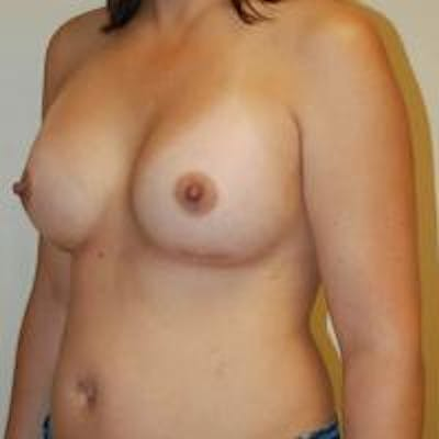Breast Augmentation Gallery - Patient 22391262 - Image 2