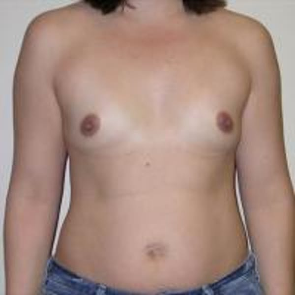 Breast Augmentation Gallery - Patient 22391262 - Image 3