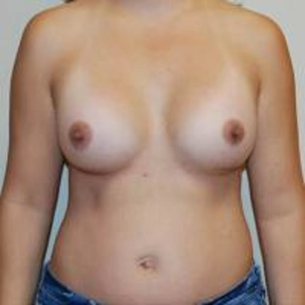 Breast Augmentation Gallery - Patient 22391262 - Image 4