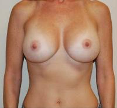 Breast Augmentation Gallery - Patient 22391263 - Image 2