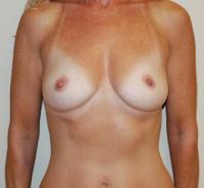 Breast Augmentation Gallery - Patient 22391263 - Image 1