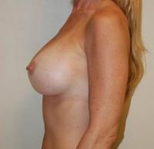 Breast Augmentation Gallery - Patient 22391263 - Image 4