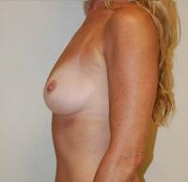 Breast Augmentation Gallery - Patient 22391263 - Image 3