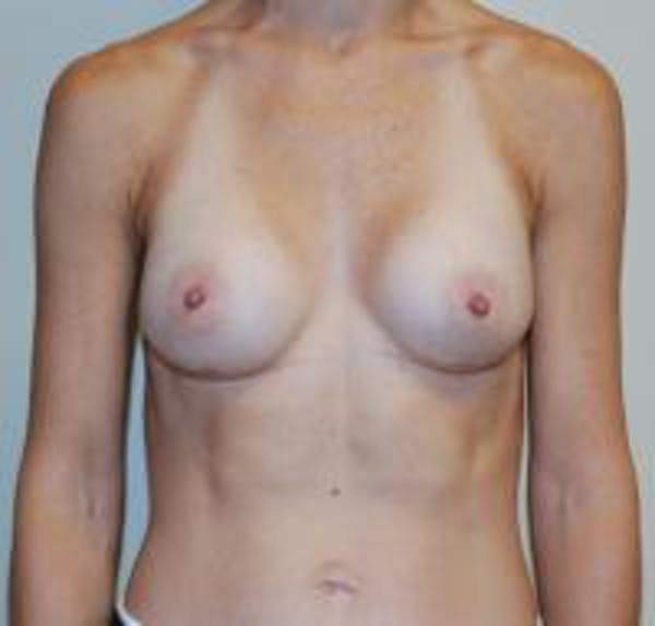 Breast Augmentation Gallery - Patient 22391264 - Image 2