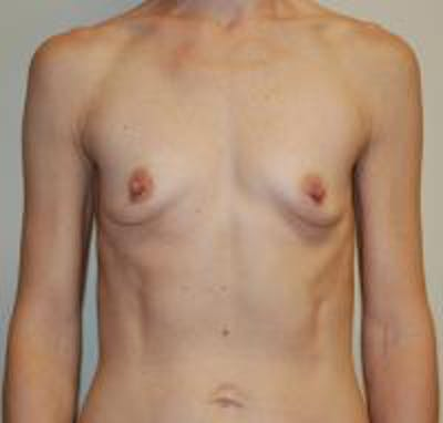 Breast Augmentation Gallery - Patient 22391264 - Image 1