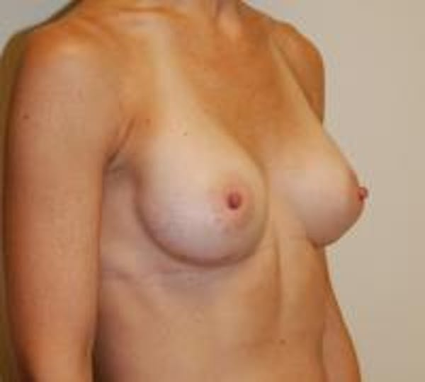 Breast Augmentation Gallery - Patient 22391264 - Image 4