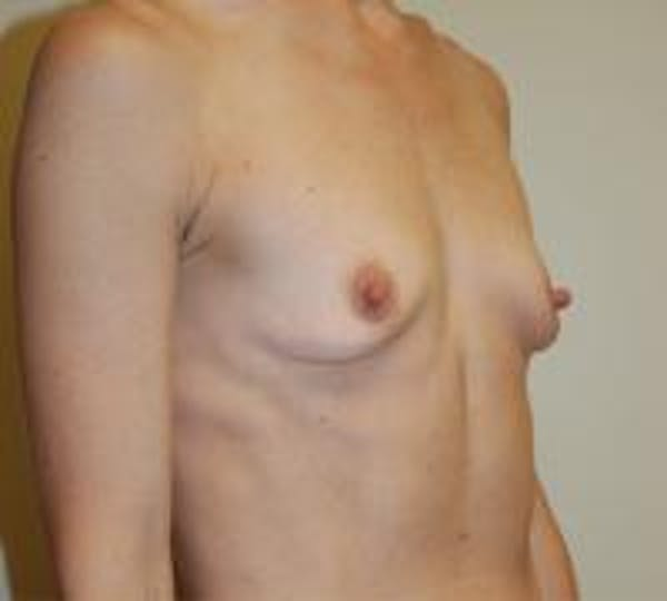Breast Augmentation Gallery - Patient 22391264 - Image 3