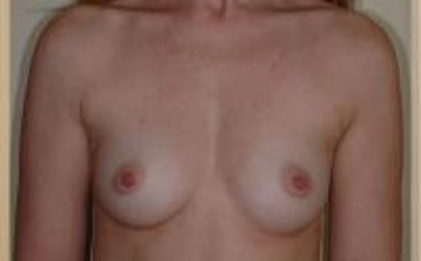 Breast Augmentation Gallery - Patient 22391265 - Image 1