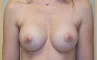 Breast Augmentation Gallery - Patient 22391265 - Image 2