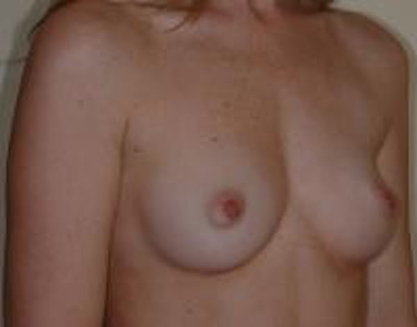 Breast Augmentation Gallery - Patient 22391265 - Image 3