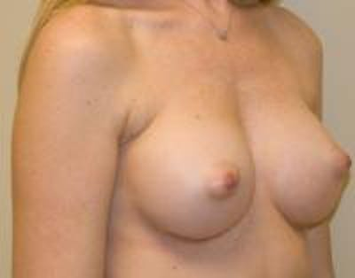 Breast Augmentation Gallery - Patient 22391265 - Image 4