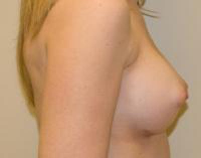 Breast Augmentation Gallery - Patient 22391265 - Image 6