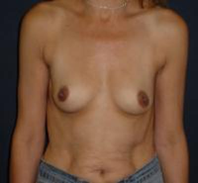 Breast Augmentation Gallery - Patient 22391267 - Image 1