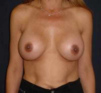 Breast Augmentation Gallery - Patient 22391267 - Image 2