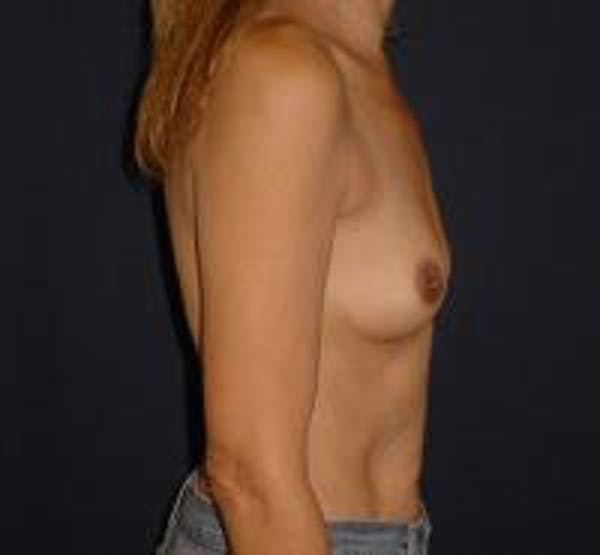 Breast Augmentation Gallery - Patient 22391267 - Image 3