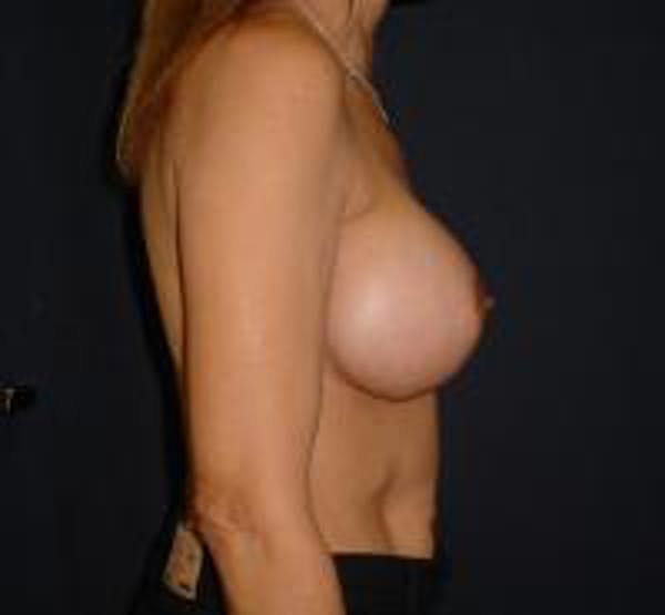 Breast Augmentation Gallery - Patient 22391267 - Image 4