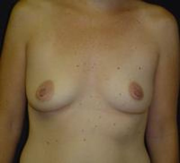 Breast Augmentation Gallery - Patient 22391268 - Image 1
