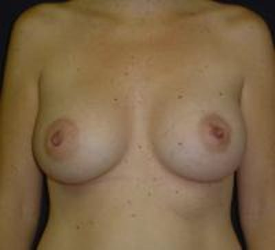 Breast Augmentation Gallery - Patient 22391268 - Image 2
