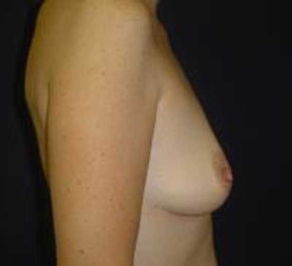 Breast Augmentation Gallery - Patient 22391268 - Image 3