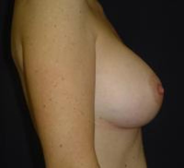 Breast Augmentation Gallery - Patient 22391268 - Image 4