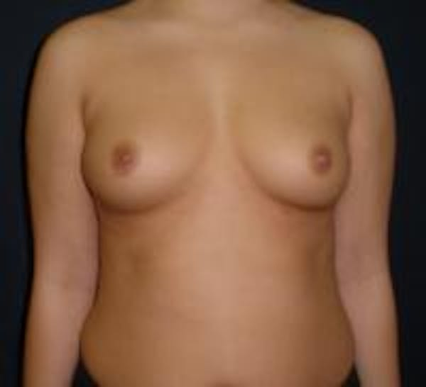 Breast Augmentation Gallery - Patient 22391269 - Image 1