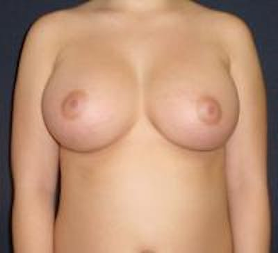 Breast Augmentation Gallery - Patient 22391269 - Image 2
