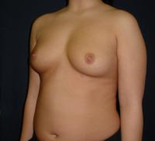 Breast Augmentation Gallery - Patient 22391269 - Image 3