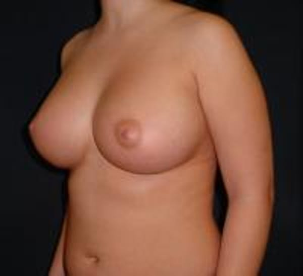 Breast Augmentation Gallery - Patient 22391269 - Image 4