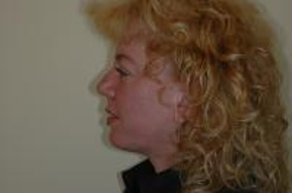 Chin Augmentation Gallery - Patient 22397094 - Image 6