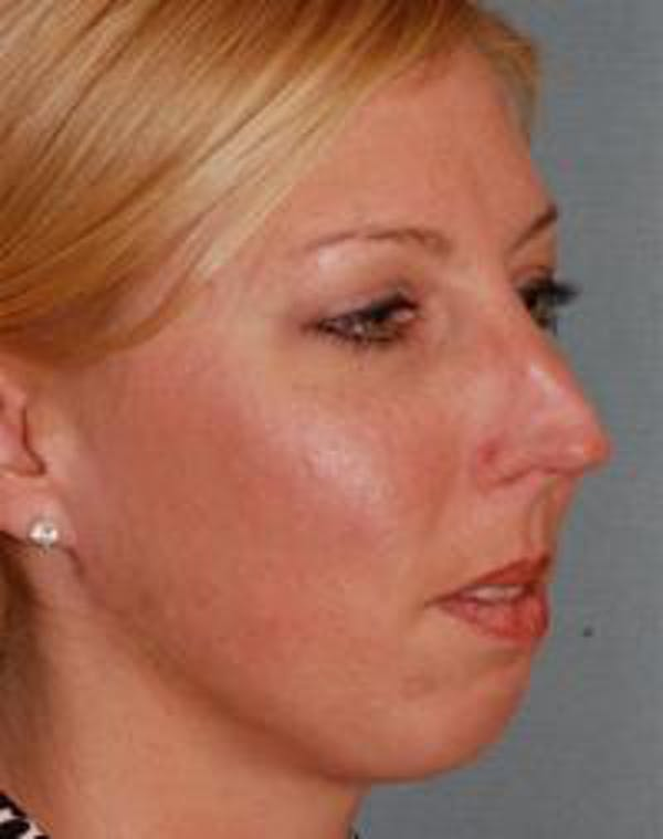 Chin Augmentation Gallery - Patient 22397095 - Image 3