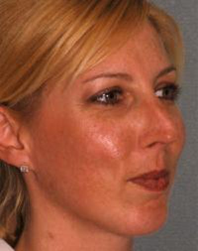Chin Augmentation Gallery - Patient 22397095 - Image 4