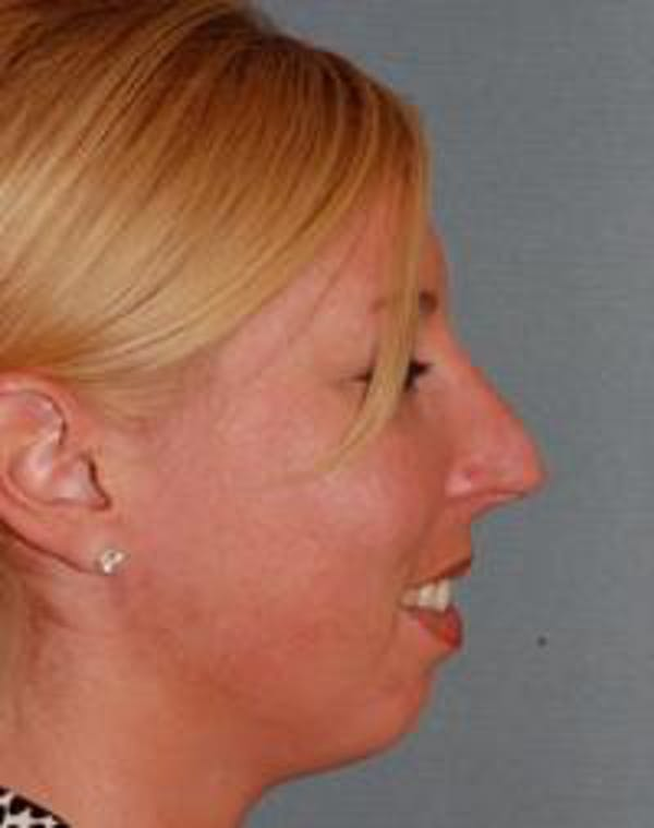 Chin Augmentation Gallery - Patient 22397095 - Image 5