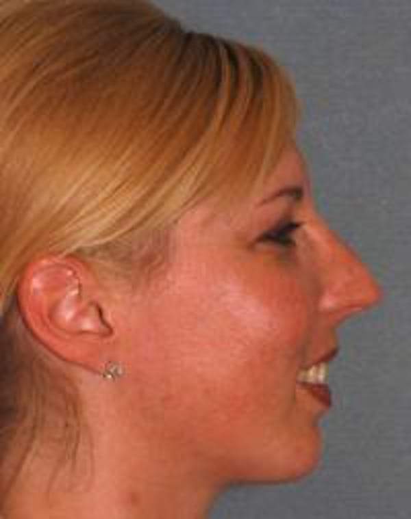 Chin Augmentation Gallery - Patient 22397095 - Image 6