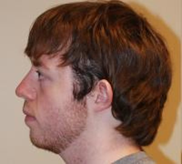 Ear Surgery Gallery - Patient 22397109 - Image 3