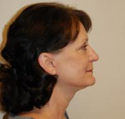 Facelift Gallery - Patient 22397133 - Image 4