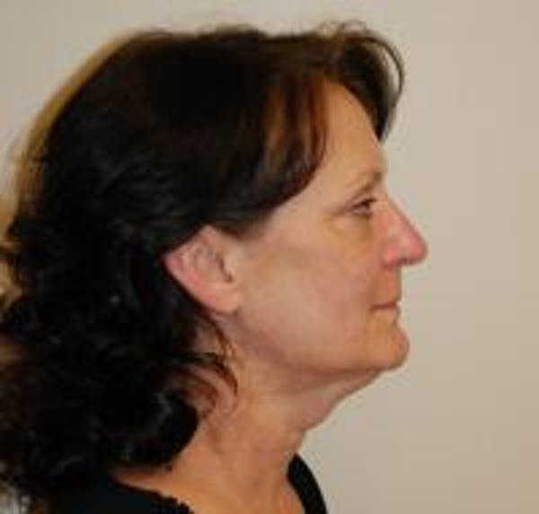 Facelift Gallery - Patient 22397133 - Image 3