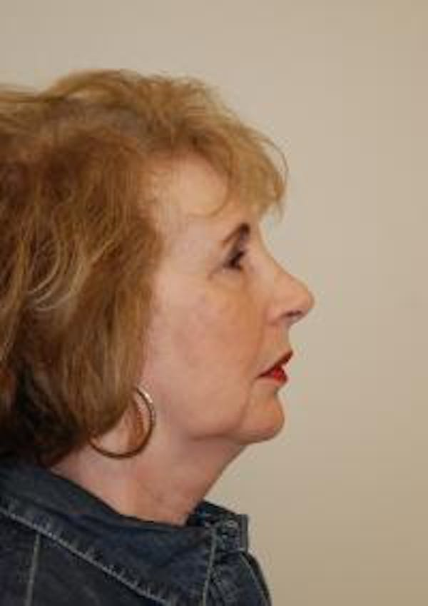 Facelift Gallery - Patient 22397134 - Image 5