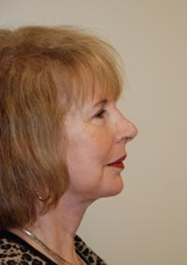 Facelift Gallery - Patient 22397134 - Image 6
