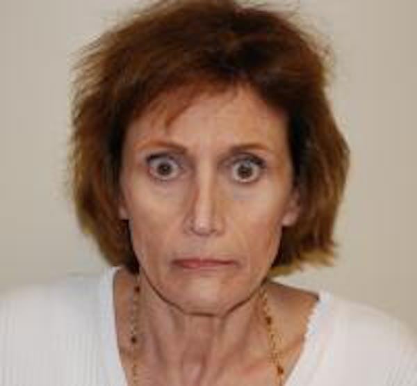 Facelift Gallery - Patient 22397135 - Image 1