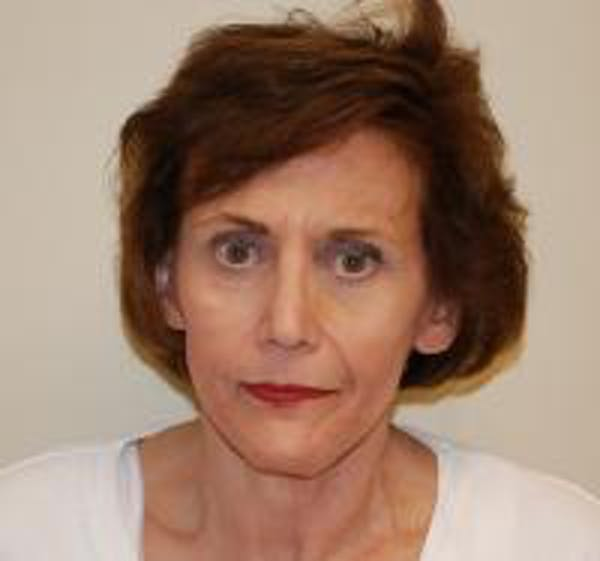 Facelift Gallery - Patient 22397135 - Image 2