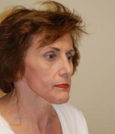 Facelift Gallery - Patient 22397135 - Image 4