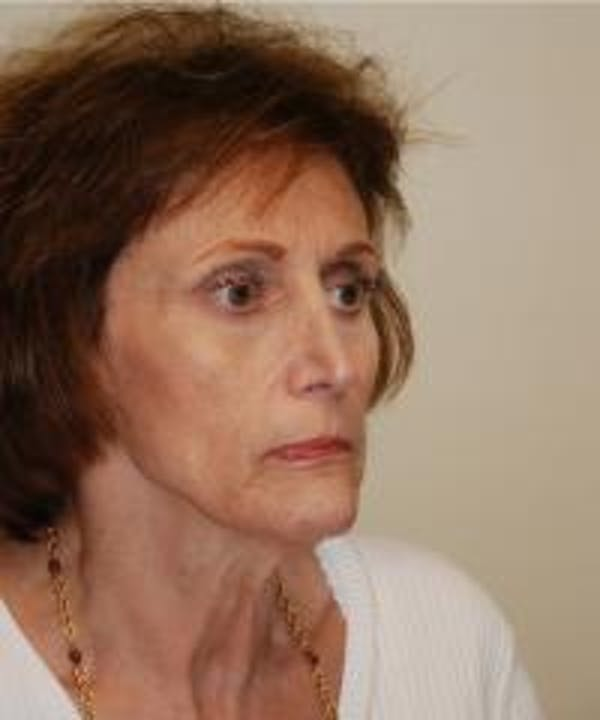Facelift Gallery - Patient 22397135 - Image 3